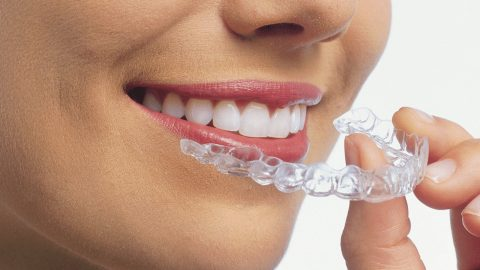 The pros of invisible braces